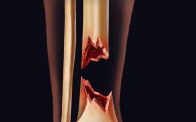 VIDEO: Novi postupak lečenja ozbiljnih preloma kostiju matičnim ćelijama