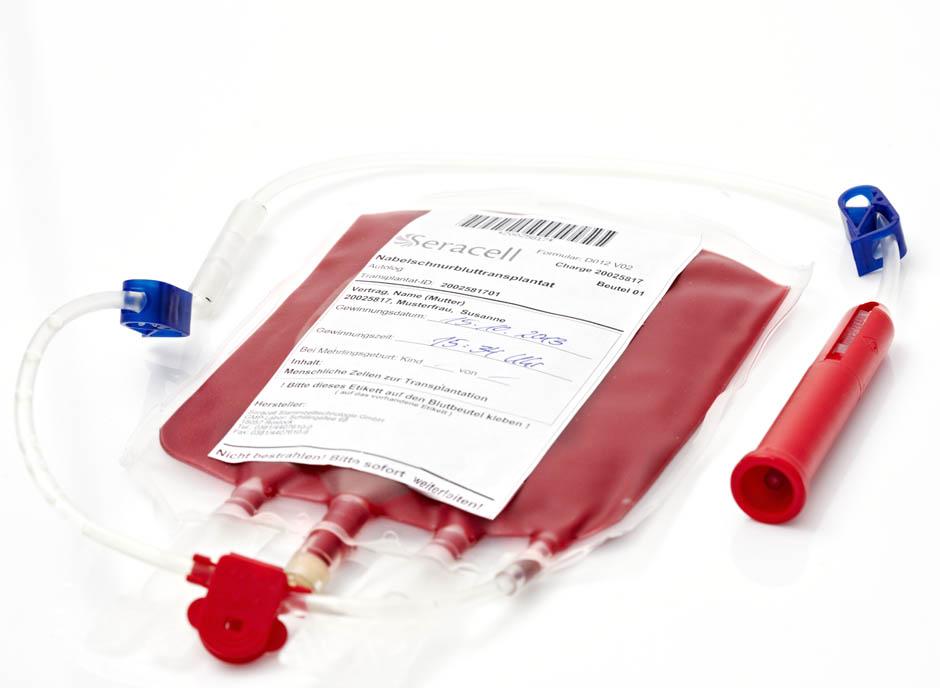 puna krv 2